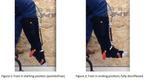 Dorsiflexion Mobility Results