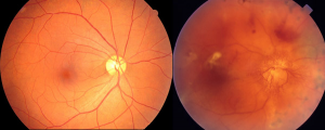 Treated DR Fundus vs. Untreated DR Fundus