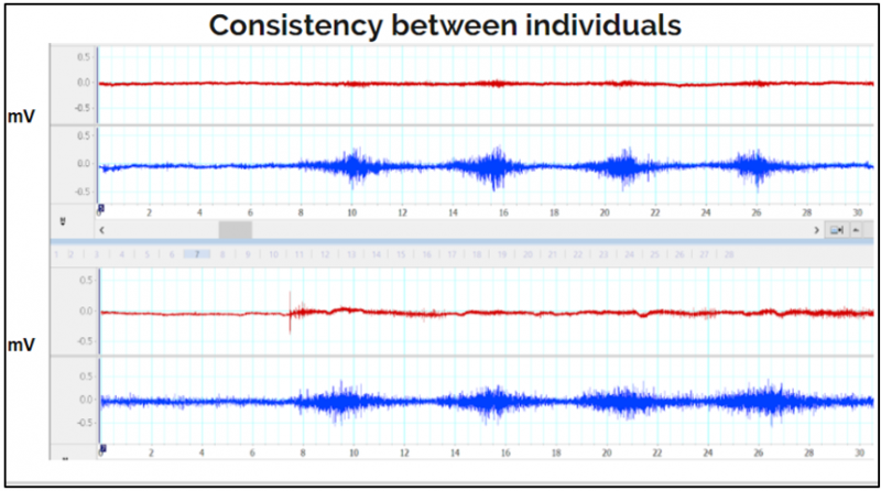 The image above shows data collected during an extension trial from two different individuals, Subject 1 (bottom two channels) and Subject 2 (top two channels). Horizontal scale is the amplitude of the signal measured in mV and the vertical scale is time measured in seconds. Total data collection per trial was done in 30 seconds. Each trial consists of about 5-7 seconds of baseline data followed by 4