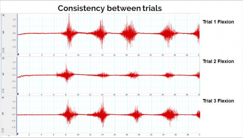Image above shows flexion data collected in channel 1 from Subject 1 using the Powerlab and LabChart7 combo used for EMG collection throughout MSD I. Horizontal scale is the amplitude of the signal measured in mV and the vertical scale is time measured in seconds. Total data collection per trial was done in 30 seconds. Each trial consists of about 5-7 seconds of baseline data followed by 4