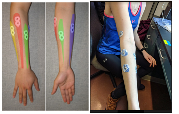 Image 1 (left) shows the initial myoware sensor placement. Image 2 (right) shows the new electrode/myoware sensor placement for data collection of activation of muscles group critical for this project.